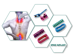 Spine Implants Manufacturers in india